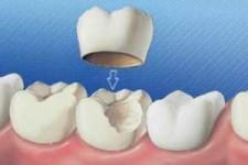 روکش کردن دندانها