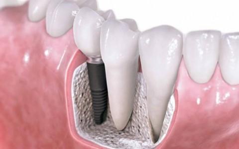 کاشت دندانها